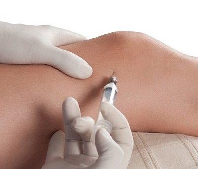 تزریق کورتیزون (استروئید)