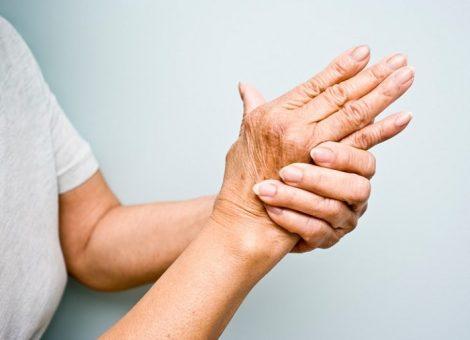 درمان روماتیسم مفصلی یا آرتریت روماتوئید با فیزیوتراپی و طب سوزنی