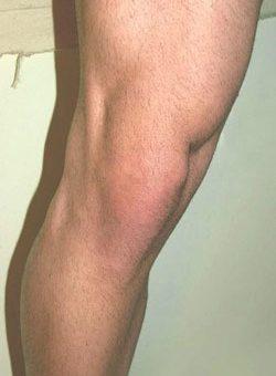 علائم-آسیب-مینیسک-مفصل-زانو
