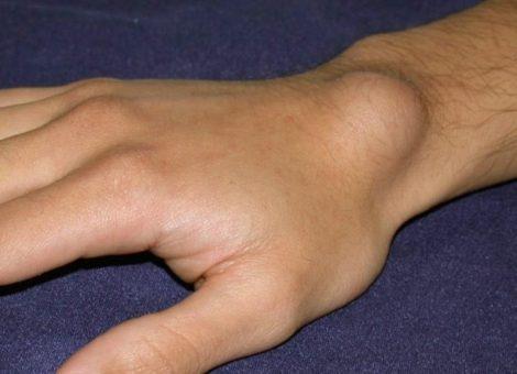 علت، علائم و درمان کیست کانگلیون مچ دست